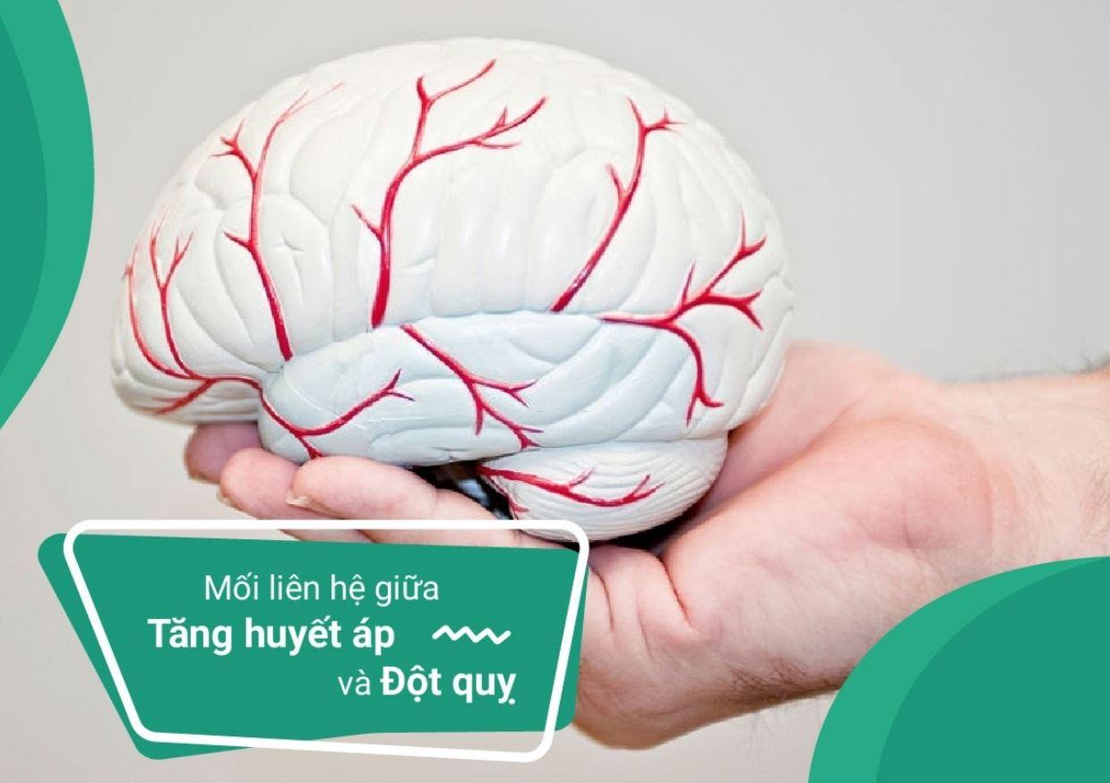 Đột quỵ do tăng huyết áp gây tắc nghẽn, vỡ mạch máu não